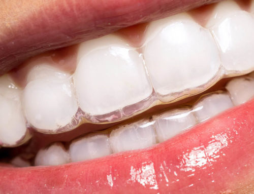 Láthatatlan fogszabályozás a CityDent fogászat budapesti rendelőjében