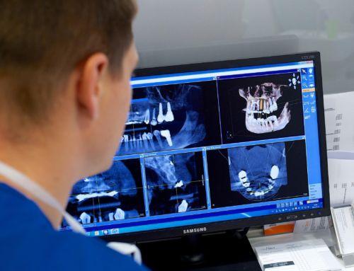 Straumann implantátum