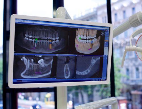 Implantátum beültetés után